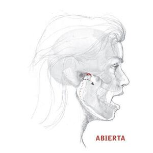 Anatomía del bruxismo: mandíbula abierta